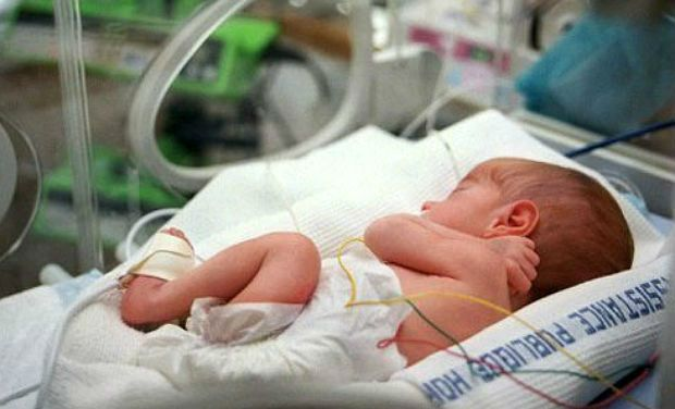 Premature Babies and How They Look Now